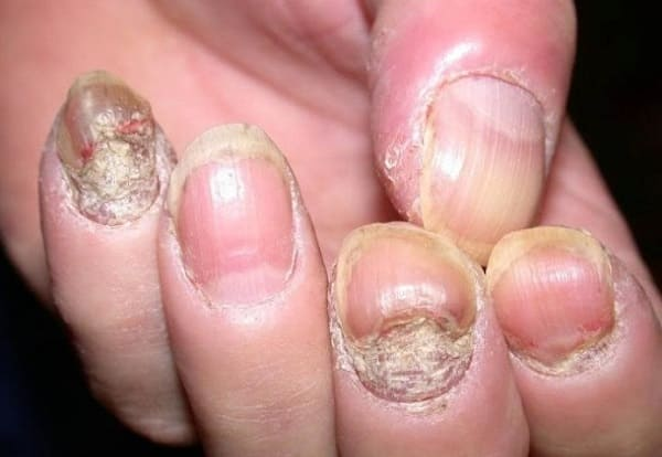 Triệu chứng của bệnh vảy nến móng tay
