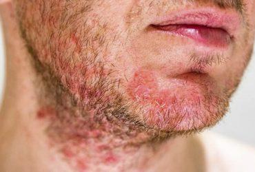 Viêm da cơ địa ở mặt và những phương pháp điều trị
