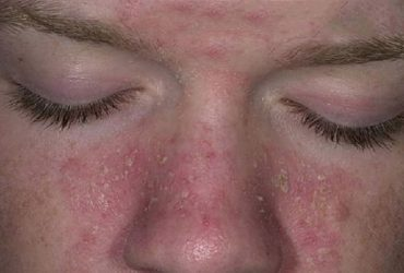 Viêm da tiết bã cánh mũi, cách nhận biết và phòng ngừa