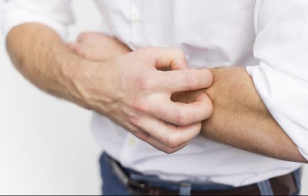 Tuyệt đối không được gãi để tránh làm tổn thương thêm các vùng da bệnh