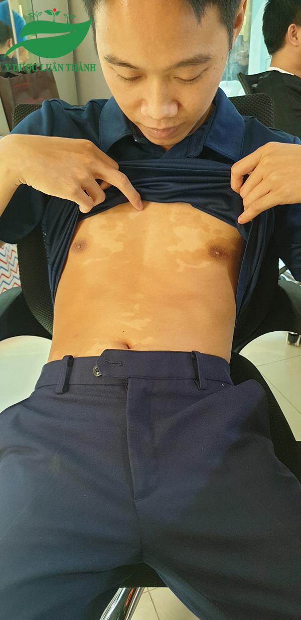 Các mảng vảy nến trên bụng không còn bong tróc, tuy nhiên vẫn để lại thâm sẹo