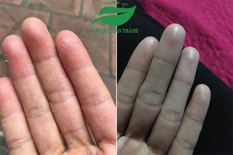 Ảnh Trước và Sau 15 ngày dùng sản phẩm của bạn Lý ở Vĩnh Phúc
