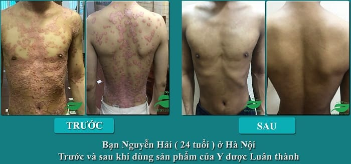 Hình ảnh của bạn Nguyễn Hải sau khi sử dụng sản phẩm