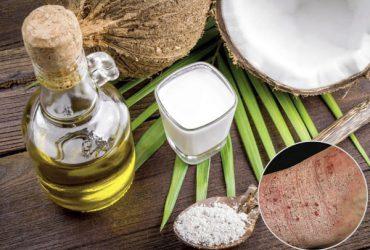 Tổng hợp những phương pháp chữa trị chàm khô bằng dầu dừa