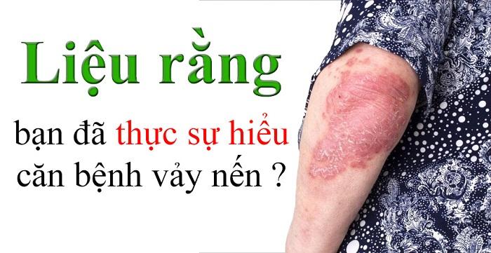 Bạn đã hiểu hết về căn bệnh vảy nến này chưa?