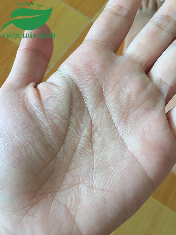 Bàn tay đã không còn thấy dấu hiệu của viêm da trước đó