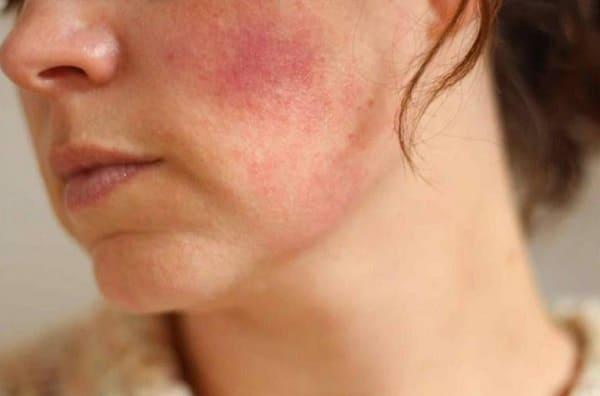 Bệnh viêm da tiếp xúc là gì?