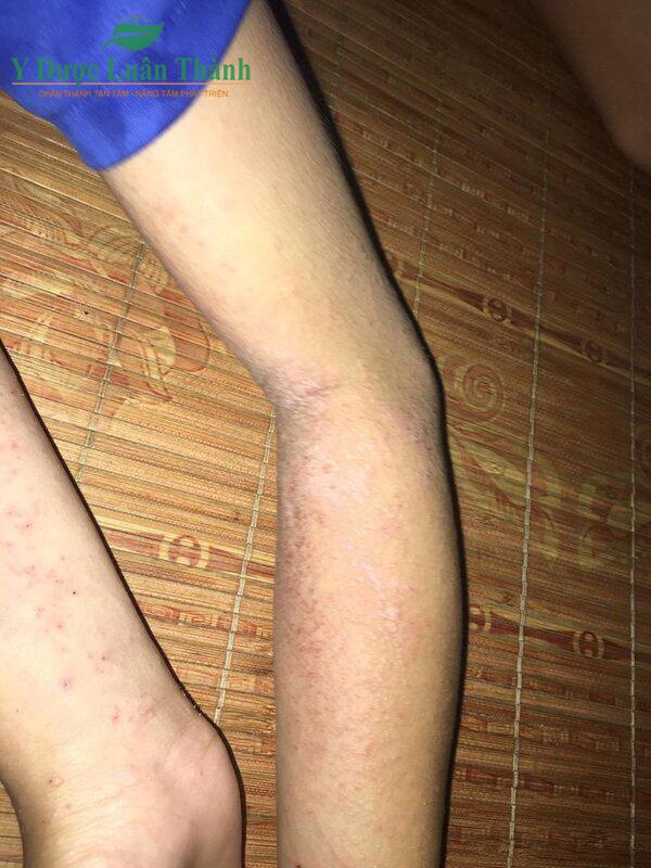 Vùng da chân cũng bị tổn thương nặng nề