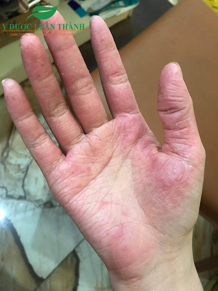 Ảnh chụp bàn tay phải trước khi dùng sản phẩm