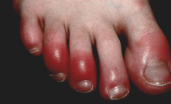 Triệu chứng bệnh cước chân