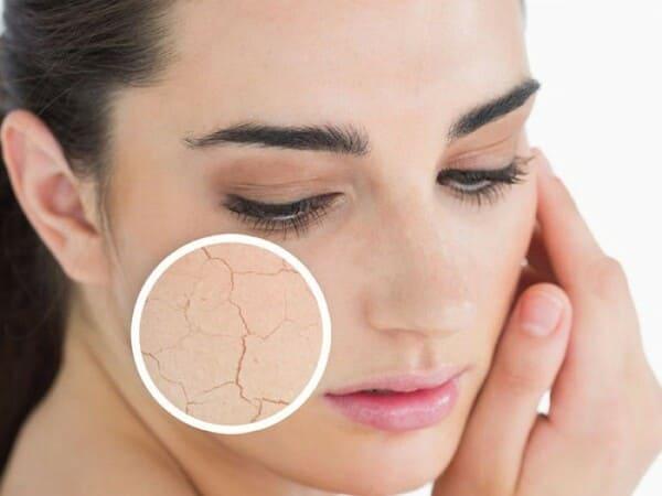 Nẻ mặt và cách điều trị hiệu quả