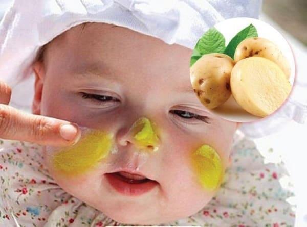 Khoai tây chứa nhiều khoáng chất tốt cho làn da