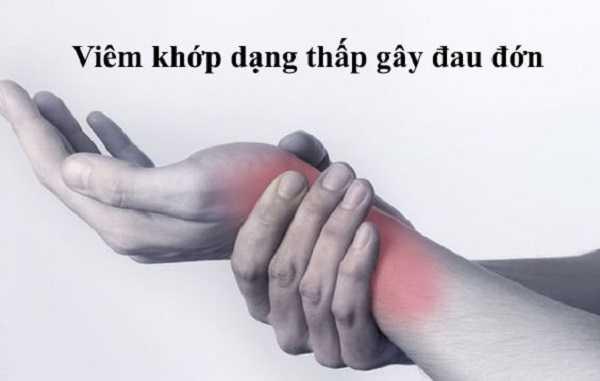 Viêm khớp dạng thấp gây ra nhiều đau đớn