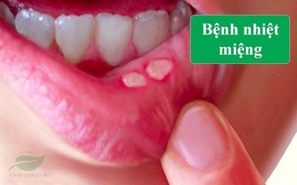 Bệnh nhiệt miệng gây lở loét