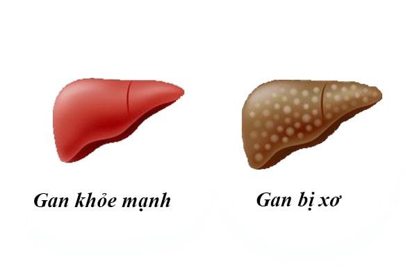 gan-khoe-manh-va-gan-bi-xo