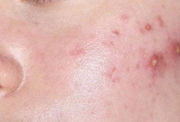 [Giải đáp] Nổi mụn ngứa ở mặt là biểu hiện của bệnh gì?