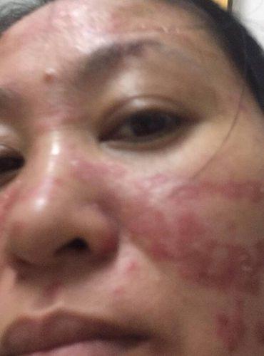 Phản hồi của bạn Hạnh Nguyễn (Sài Gòn) bị vảy nến da mặt