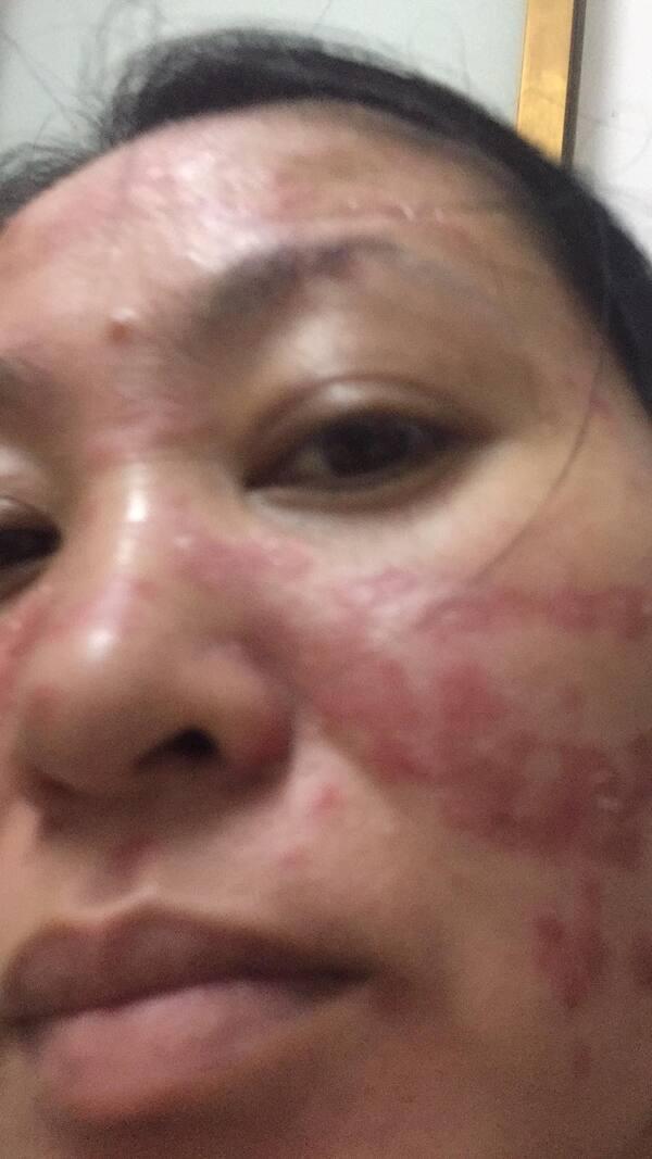 Vùng da mặt luôn là điểm khiến người bệnh vảy nến cảm thấy mất tự tin nhiều nhất